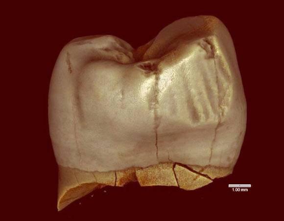 Wow, Neanderthal awal menggunakan pasta gigi 46.000 tahun yang lalu